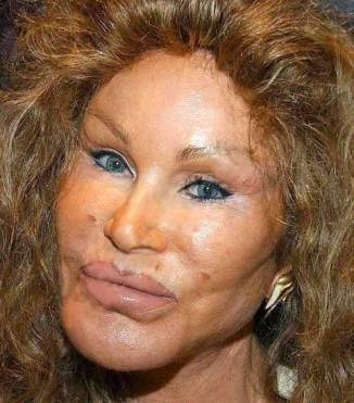 The poster child for Botox use. How beautiful?